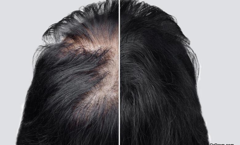 Women Get A Hair Transplant